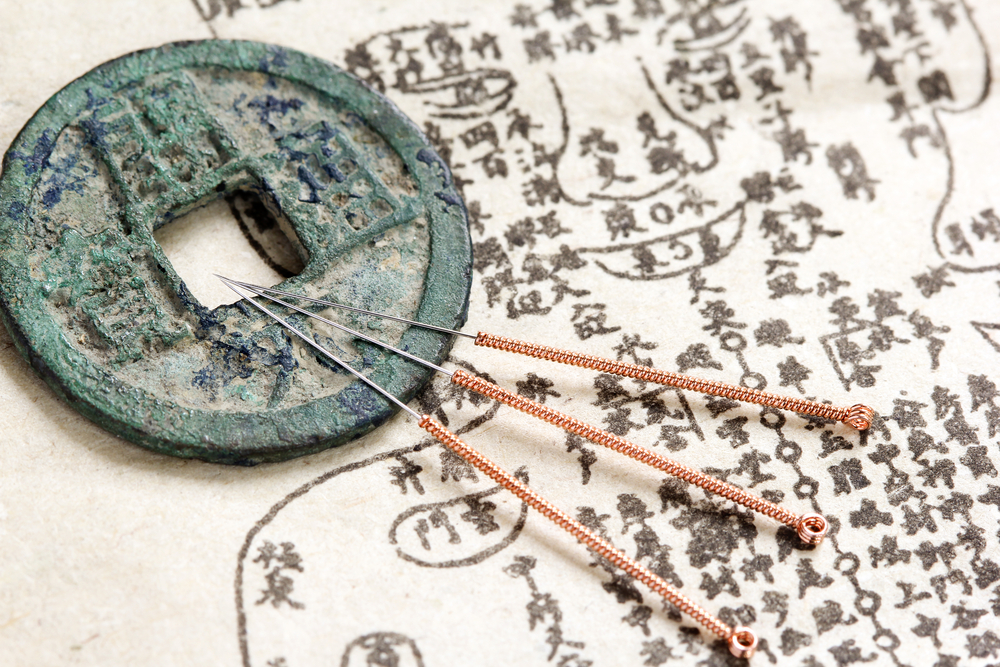 acupuncture needles and ancient medical illustration
